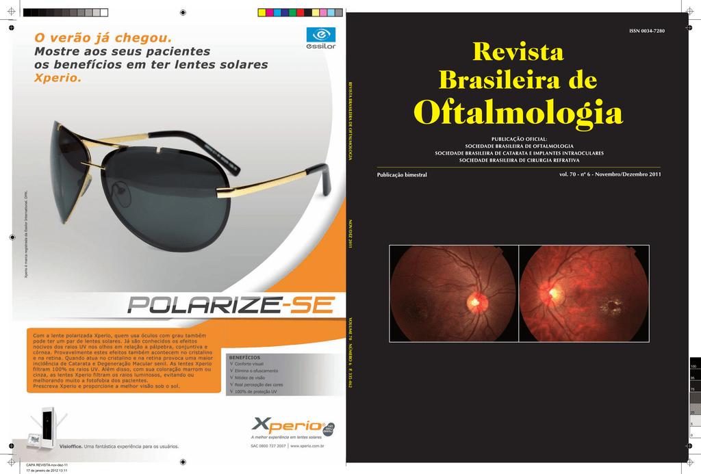 cac0367f2 Nov-Dez - Sociedade Brasileira de Oftalmologia