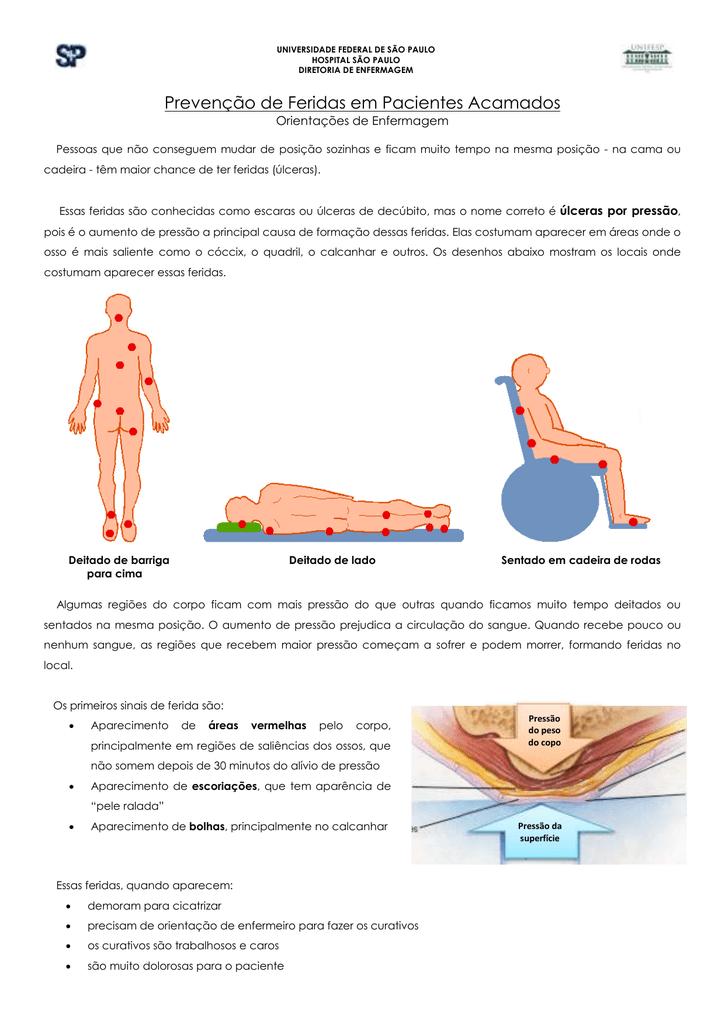 úlceras do corpo fotos