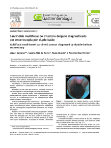 Carcinóide multifocal do intestino delgado diagnosticado por