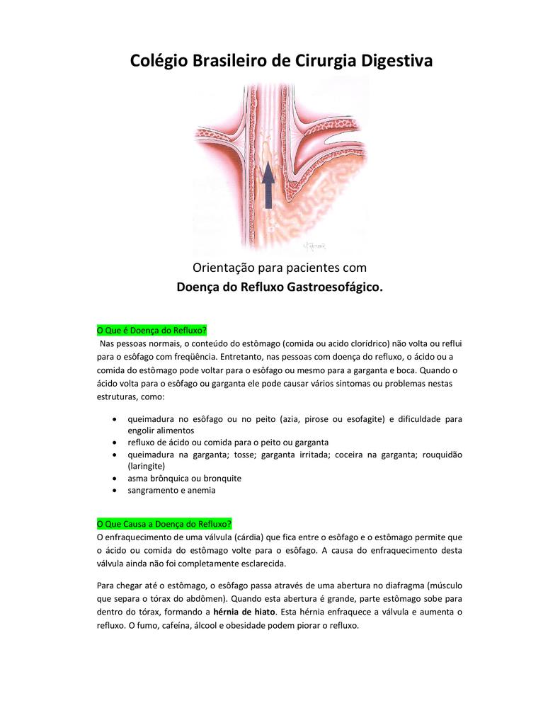 dieta para esofagite de refluxo e hernia de hiato