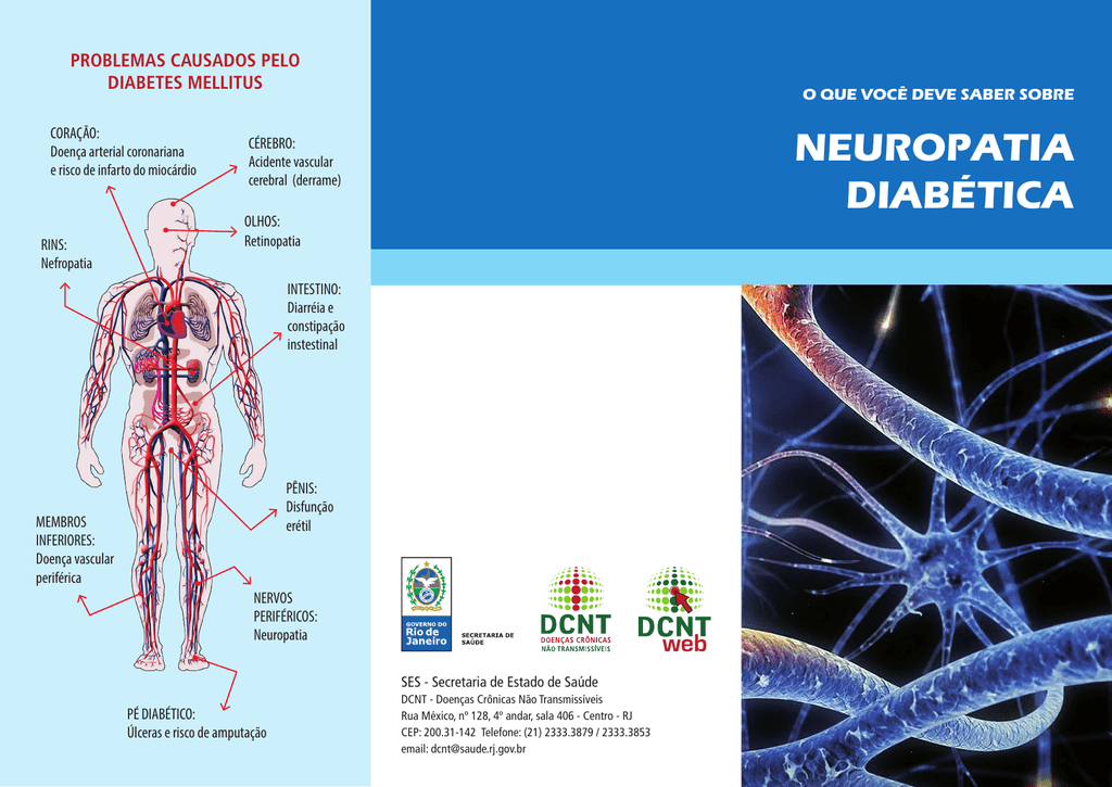 Estomacales problemas neuropatía y