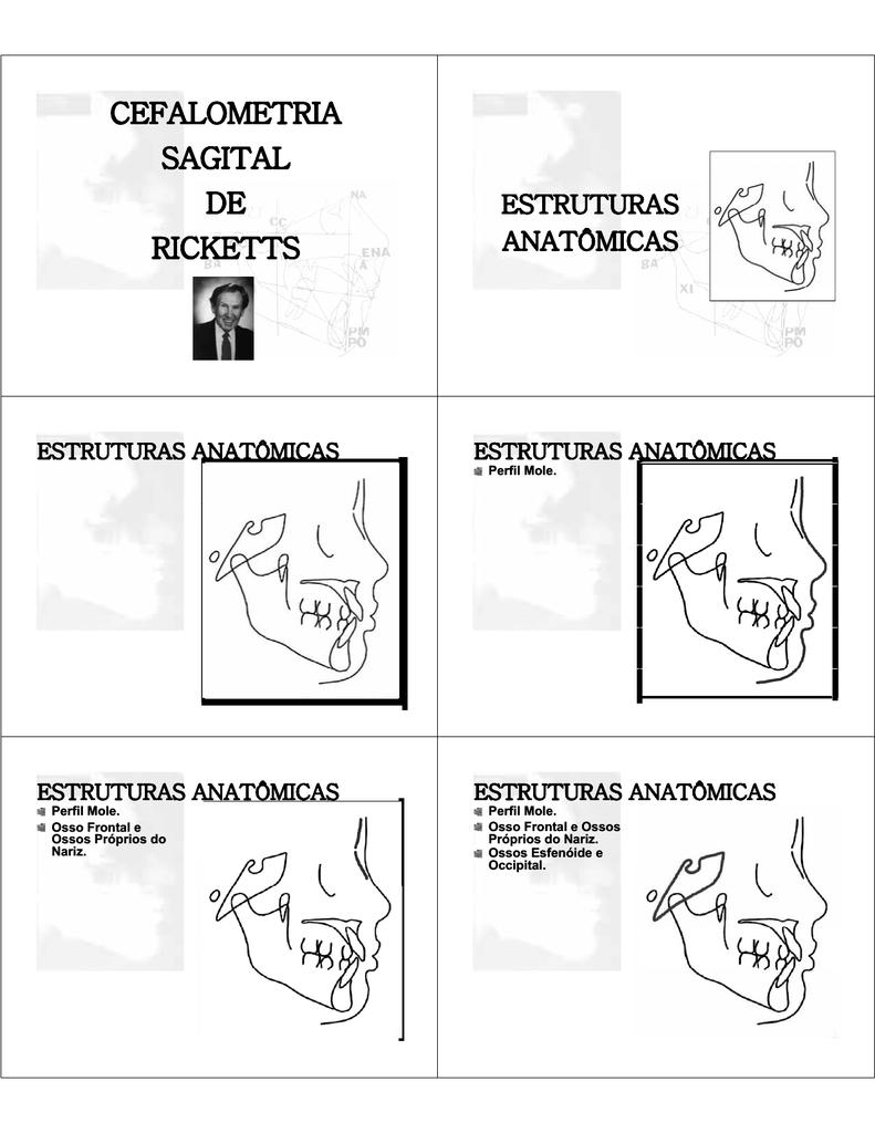 Cefalometria Sagital Cefalometria Sagital De Sagital De