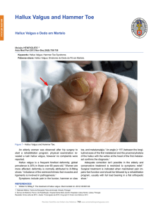 Hallux Valgus and Hammer Toe