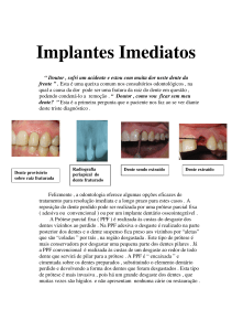 Implantes Imediatos